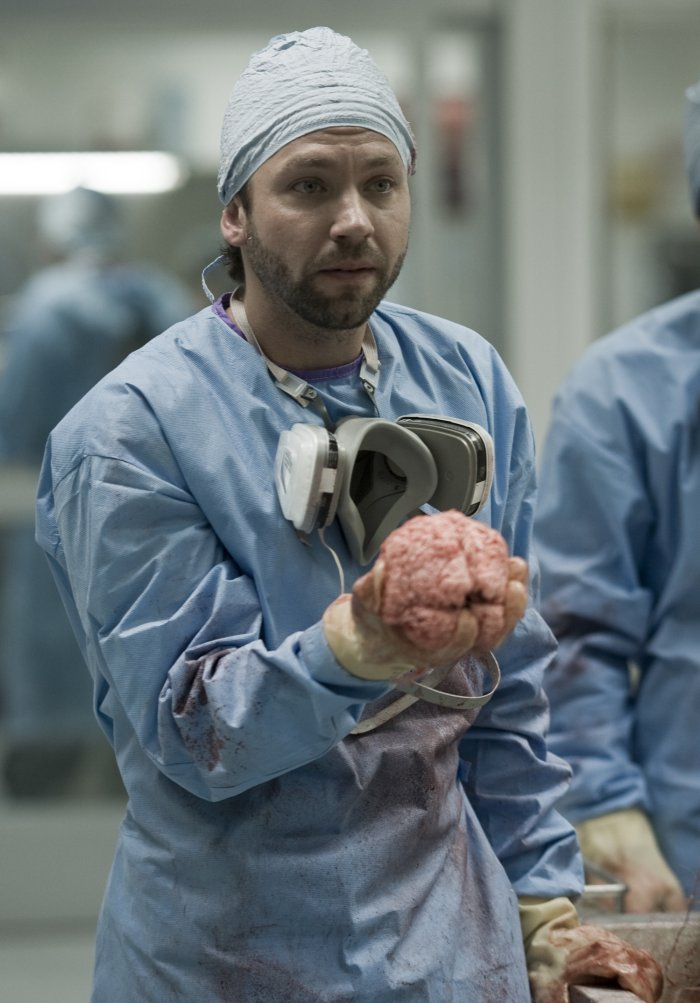 Dr. Jake Gallo (Michael Weston) hat Hirn